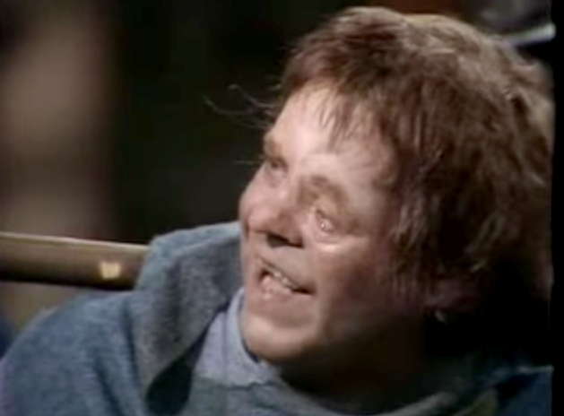 Warren Clarke as Quasimodo 1977 The Hunchback of Notre Dame picture image